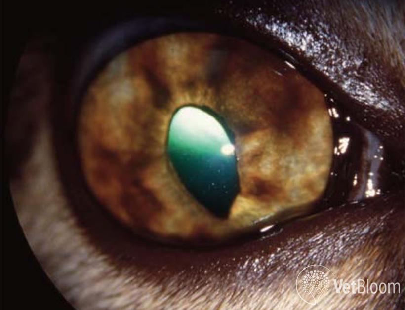 Glaucoma-Fig-2