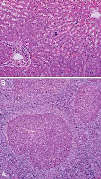 CAH Fig1